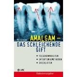 Amalgam - Das schleichende Gift